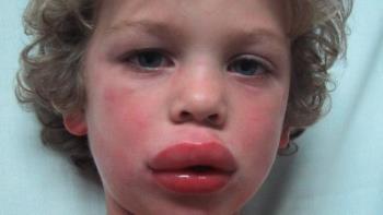 شوک آنافیلاکتیک در کودکان