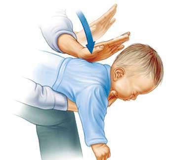 پریدن شیء خارجی در گوش و حلق و بینی کودک