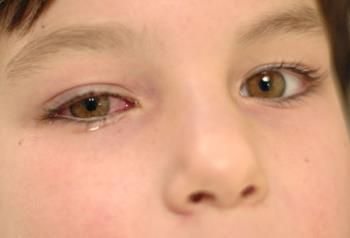 التهاب ملتحمه ی چشم در کودکان