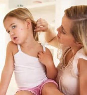 علائم و درمان آبله مرغان در کودکان