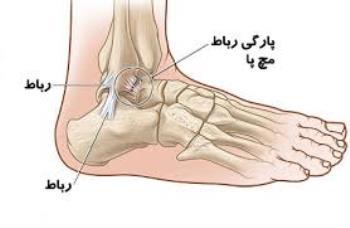 آسیب پیچ خوردگی مفصل و رگ به رگ شدن در کودکان