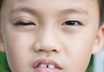 اختلالات پلک کودکان