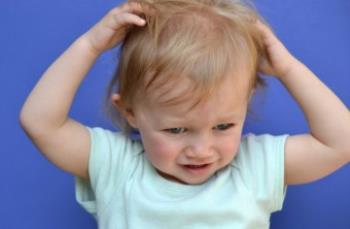 کندن مو در کودکان